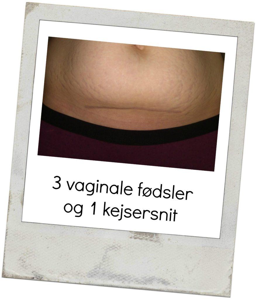 3 vaginale fødsler og 1 kejsersnit